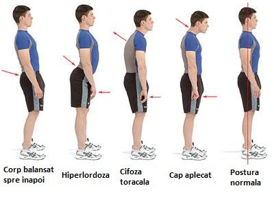 Modul în care postura afectează vederea