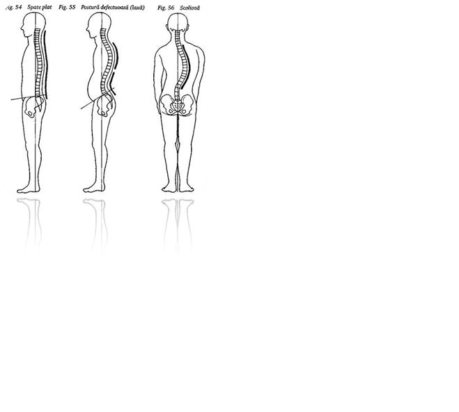 postura afectează vederea