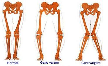 Tulburari de aliniament ale genunchiului