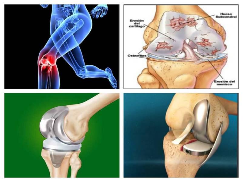 proteza genunchi